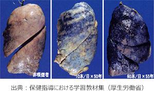 肺の比較画像