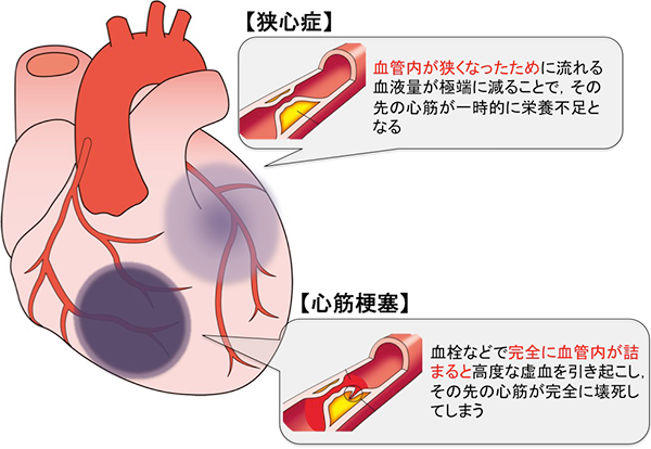 狭心症と心筋梗塞