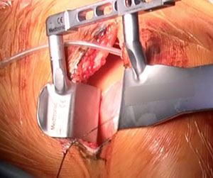 MICS CABG専用器具にて手術施行
