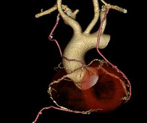 多枝動脈グラフトによるバイパス手術