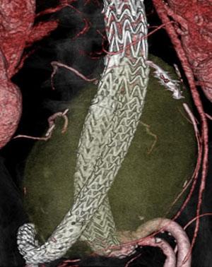腹部大動脈瘤ステントグラフト内挿術3