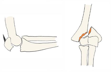 肘関節疾患