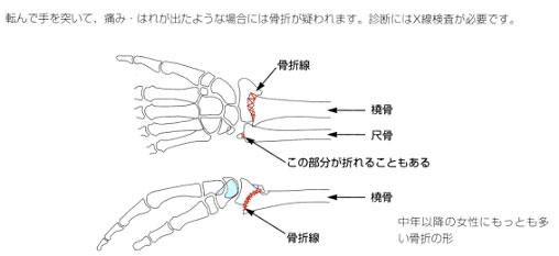 橈骨遠位端骨折2