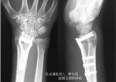橈骨遠位端骨折4
