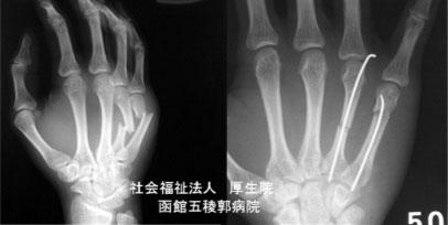 手指の骨折