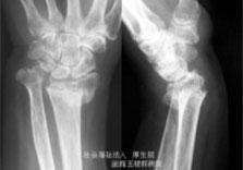 外傷後の後遺症