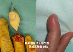 整形外科「手の外科」診療内容の紹介