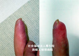 指尖部損傷後の指変形