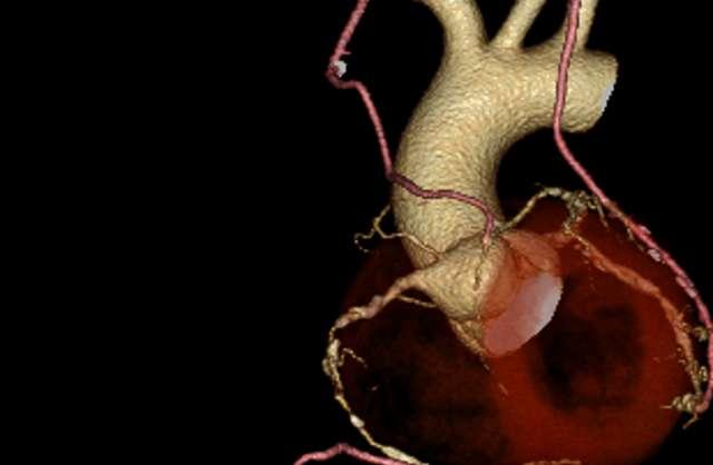 低侵襲心臓血管手術